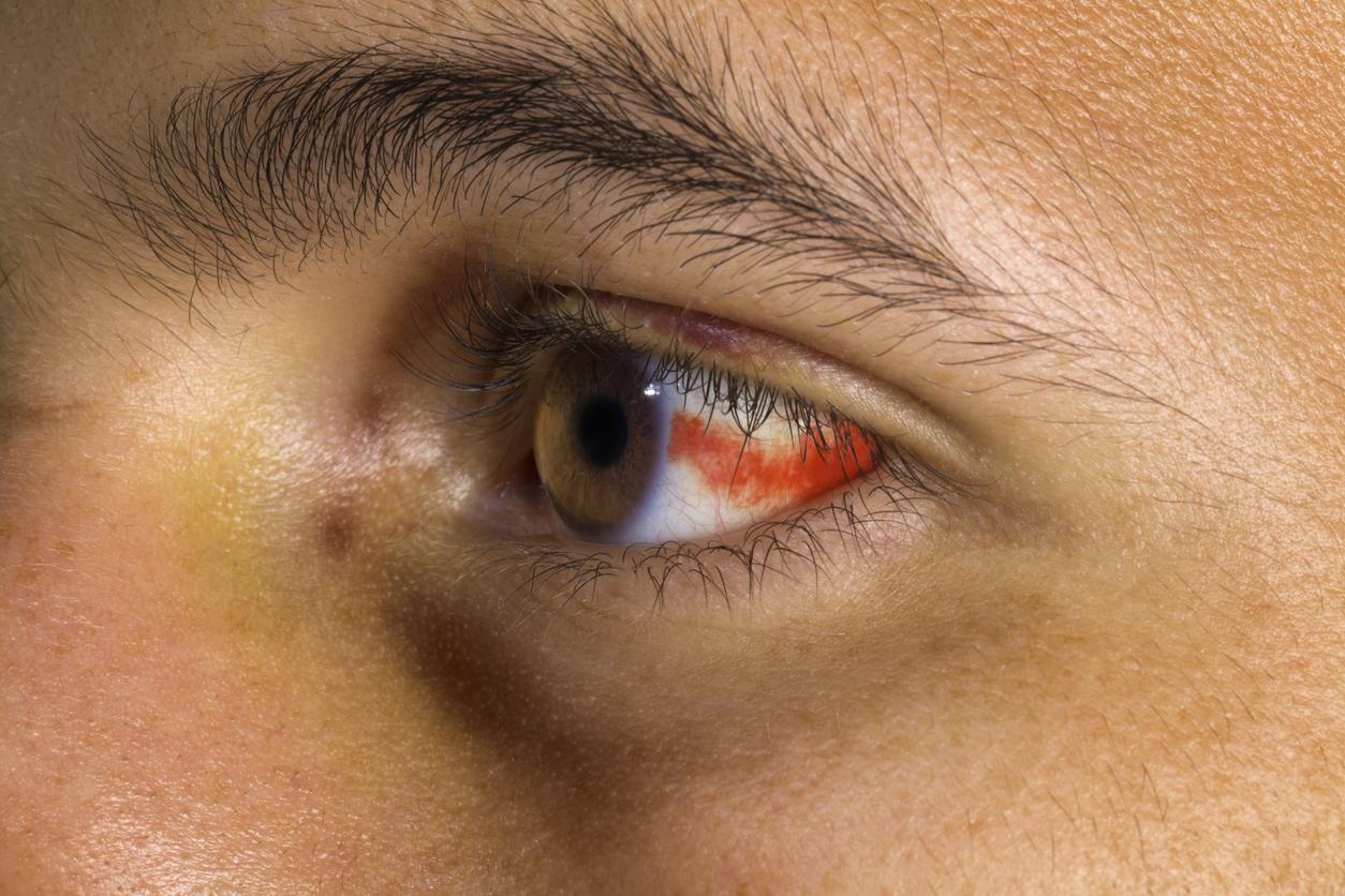 emorragia-sottocongiuntivale-cause-rimedi