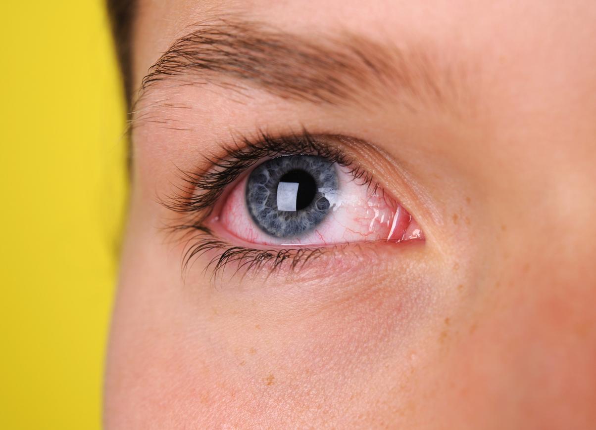 irritazione-agli-occhi
