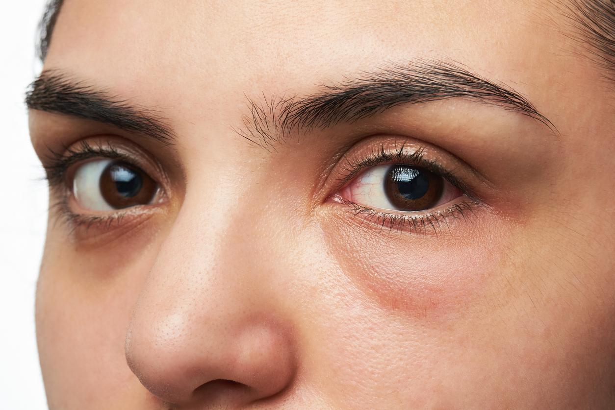 occhi-gonfi-allergia