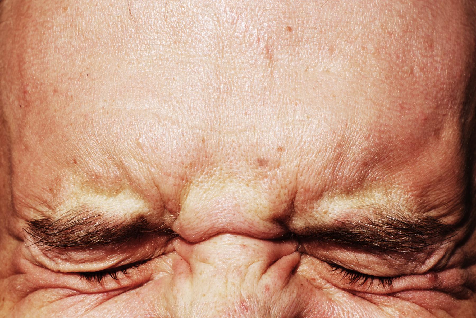 oftalmalgia-cure-sintomi-rimedi