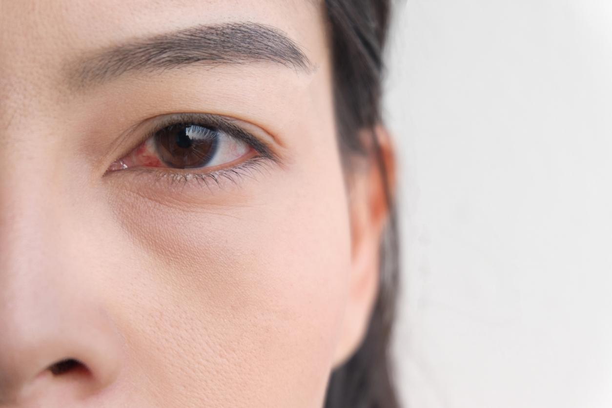 sindrome-occhio-secco-cause-rimedi