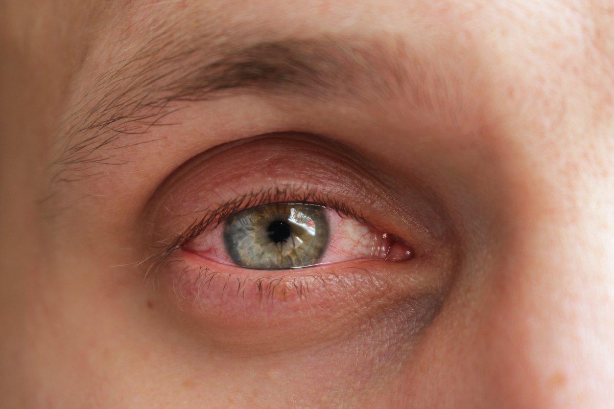 rimedi-macchia-di-sangue-occhio
